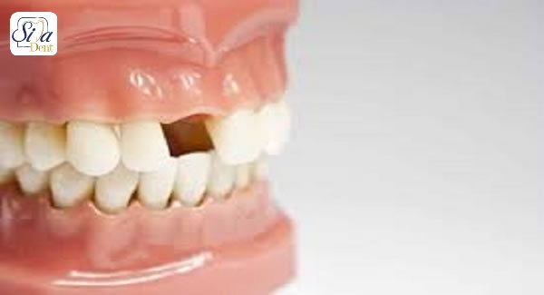 چرا نباید جای دندان از دست رفته خالی بماند
