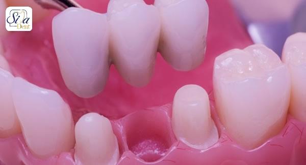 خالی بودن دندان از دست رفته