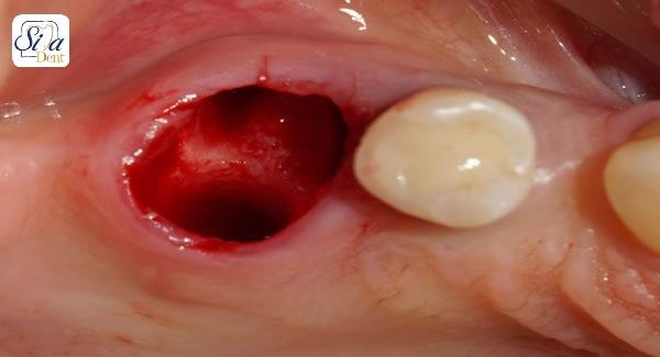 کشیدن دندان تنها در صورت اجبار معقول است