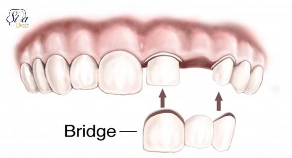 دندان هایتان را با کشیدن از دست ندهید