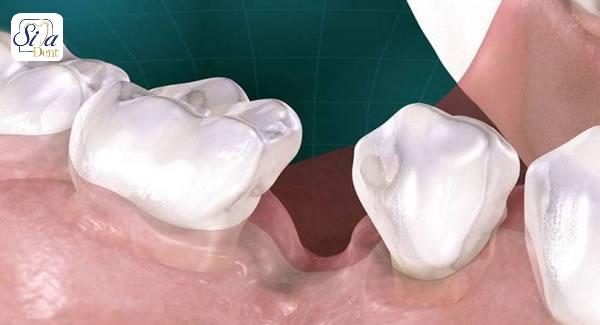 مضرات خالی بودن دندان از دست رفته