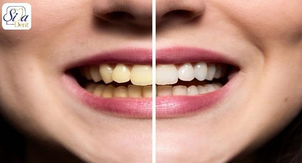 دهانشویه و رنگ دندان