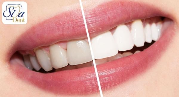 تغییر رنگ دندان, علل تغییر رنگ دندان ها