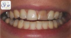 علل تغییر رنگ دندان ها