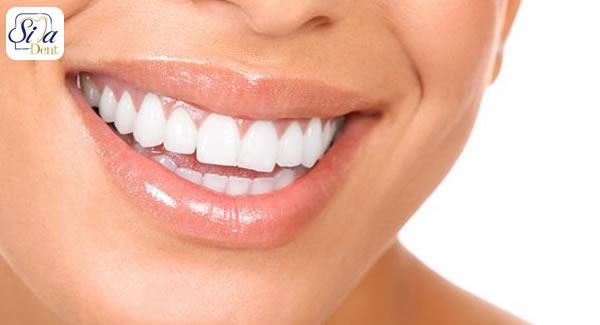 اصلاح طرح لبخند چیست