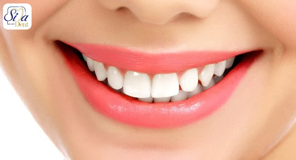 what is hollywood smile