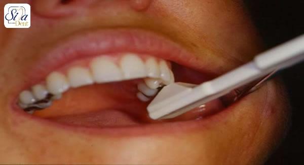انواع ترک خوردگی و شکستگی در دندان