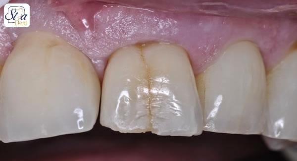 علل ایجاد ترک مویی دندان