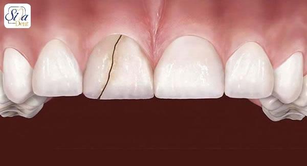 ترک مویی در دندان