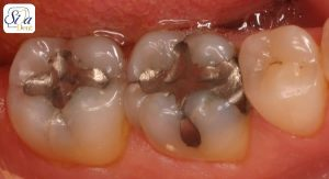پر کردگی دندان