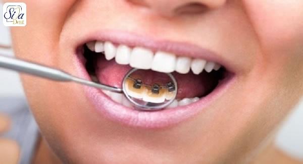مزایا و معایب بریس پشت دندانی