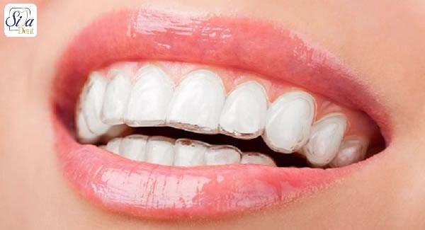 good-candidate-lingual-braces