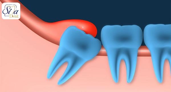 التهاب لثه در اطراف دندان عقل