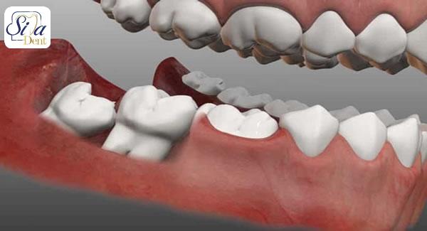 ملتهب شدن لثه در اطراف دندان عقل