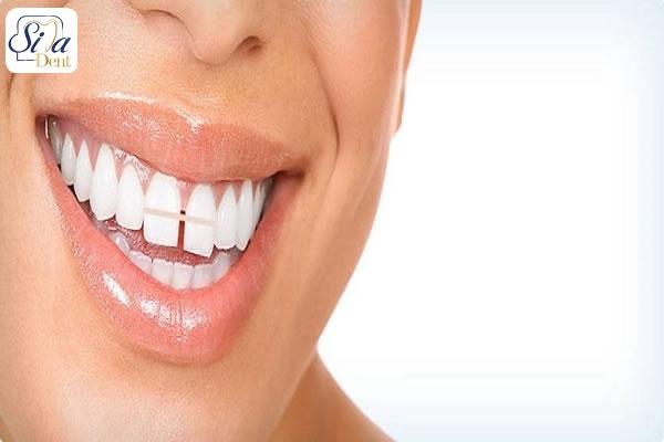 روش باندینگ برای بستن فاصله دندان ها
