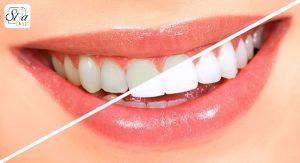 معایب سفید کننده های دندان