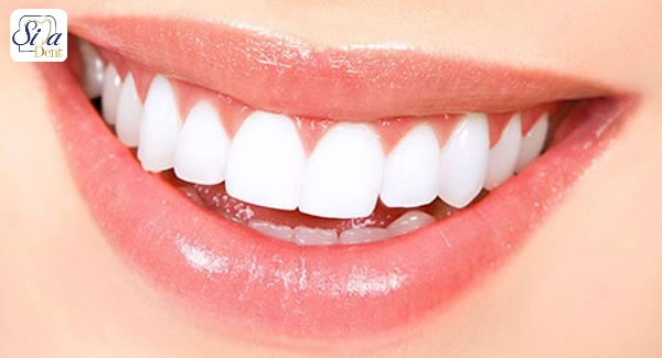 tooth whitening materials disadvantage