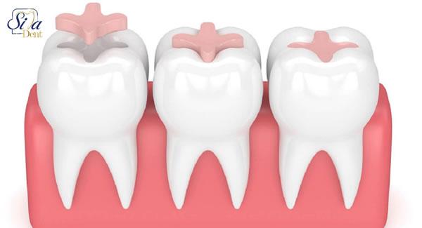 اینله و انله دندان
