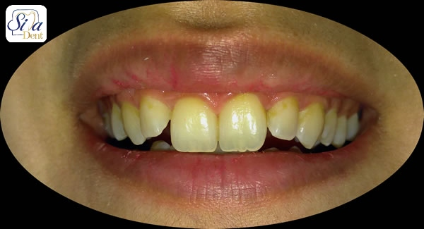 اصلاح دندان های خرگوشی