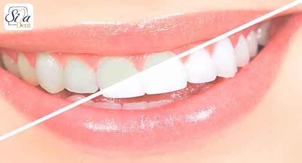 درمان دندان خرگوشی به کمک ارتودنسی