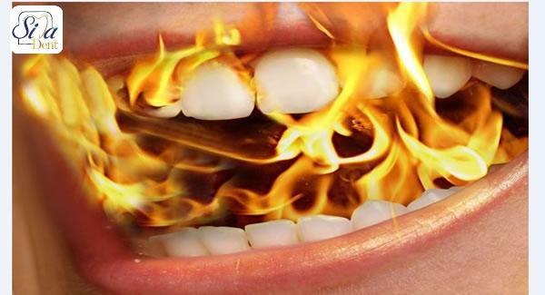 علل و راه های درمان سندرم سوزش دهان
