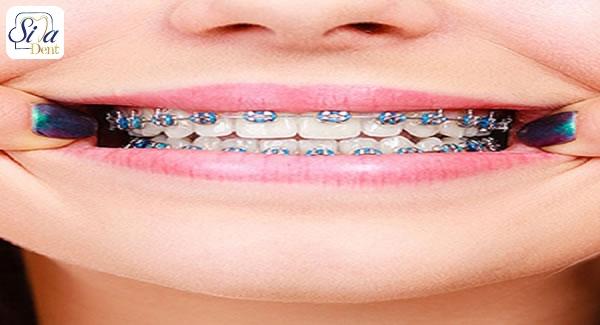 نامرتبی دندان نیش