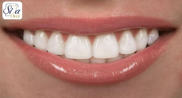 طول عمر کامپوزیت دندانی