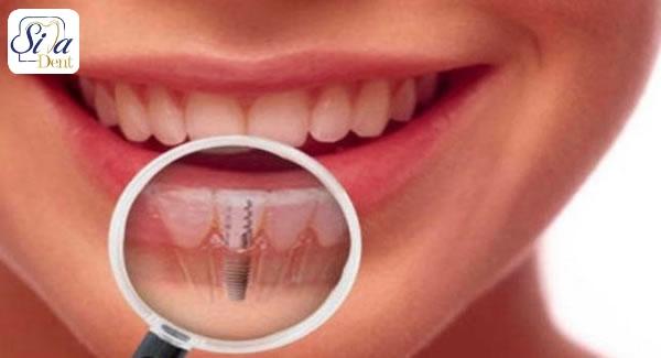 تاثیر ویتامین D بر ایمپلنت دندان چگونه است؟