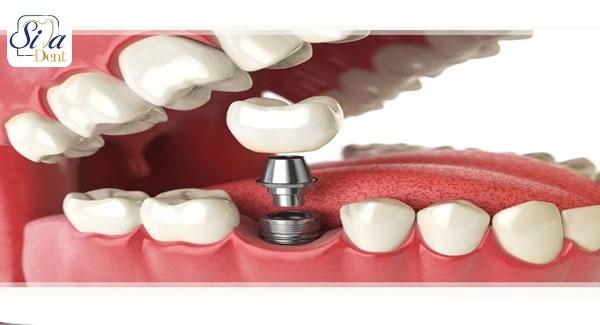 تاثیر ویتامین D بر ایمپلنت دندان با دریافت مقادیر بیشتر ویتامین دی