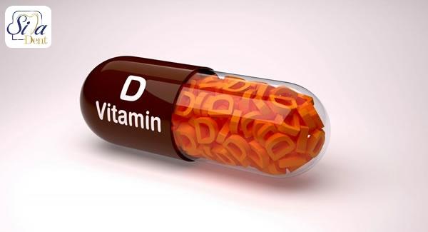 تاثیر ویتامین D بر ایمپلنت دندان