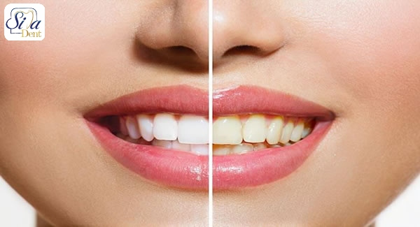 روش های سفید کردن دندان ها در خانه