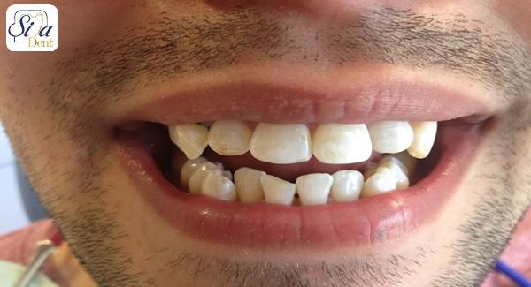 علل کج شدن دندان