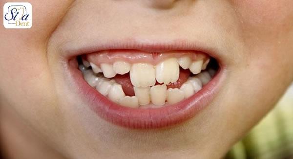 علل رایج کج شدن دندان