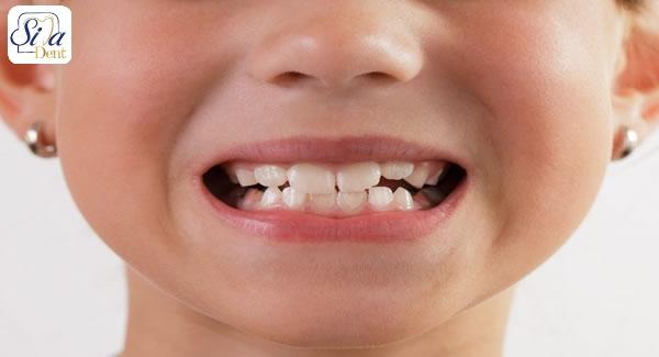 ژنتیک و کج شدن دندان