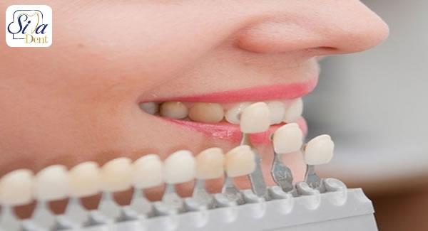 زیبایی دندان