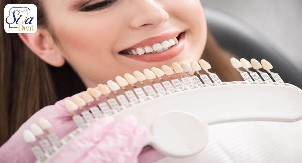 کاربرد رنگ لمینت دندان