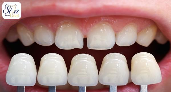 ملاک های انتخاب رنگ لمینت دندان