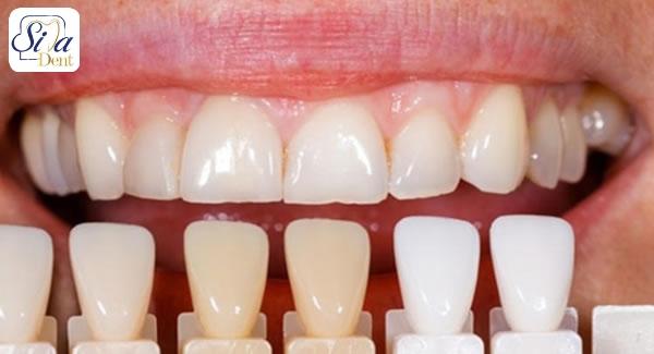 مراقبت از رنگ لمینت دندان ها