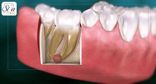 کیست دندان