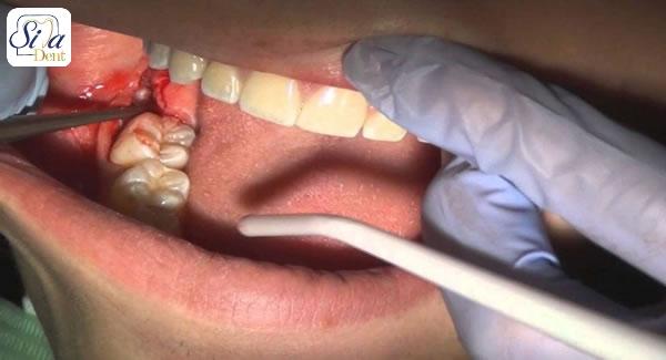 رویش دندان عقل چه دردسر هایی در پی دارد؟