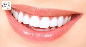 راز های داشتن لبخند زیبا