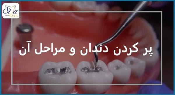 پرکردگی دندان چیست