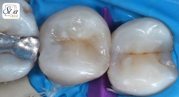دلایل شکستن و یا خالی شدن دندان پرکرده