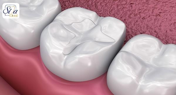 انواع روش های پرکردگی دندان پوسیده