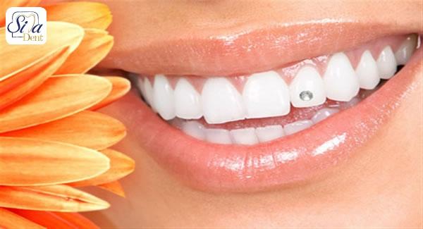 برداشتن نگین از روی دندان