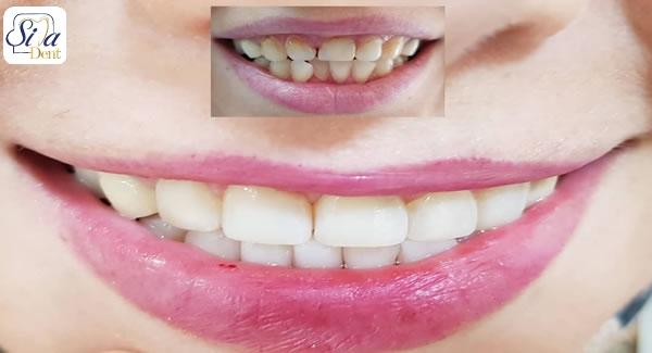پوسیدگی دندان با کامپوزیت ها