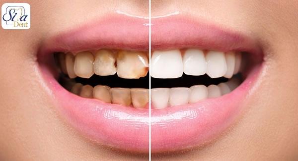 جلوگیری از پوسیدگی دندان با کامپوزیت ها