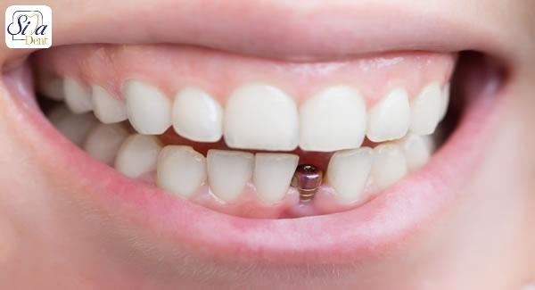 داروهایی که پس از ایمپلنت باید استفاده کنیم