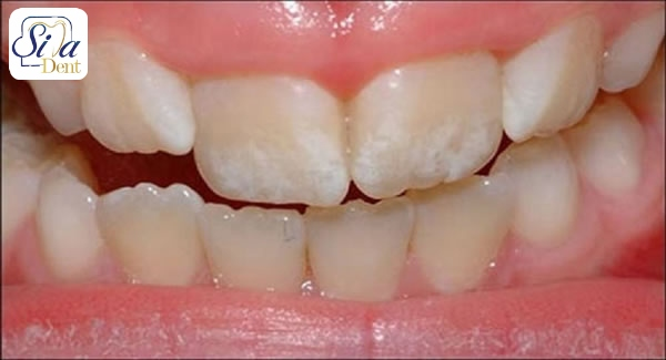 علت ایجاد لکه های سفید روی دندان