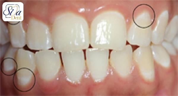 آیا لکه های سفید روی دندان کودکان نیاز به درمان دارد؟